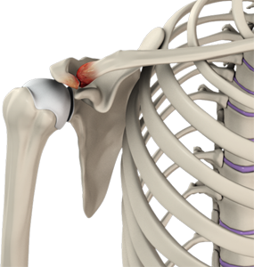 Ac Joint Pain Shoulder