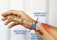 de quervains tenosynovitis steroid injection